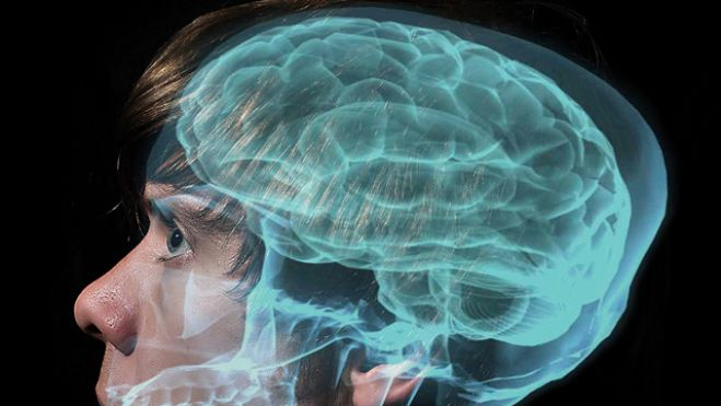 What evil lurks in the brain? German neurologist says he's found a 'dark patch'